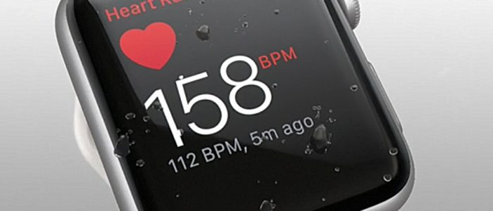 Apple-Watch 3 ekg